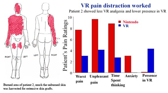 VR for pain distraction