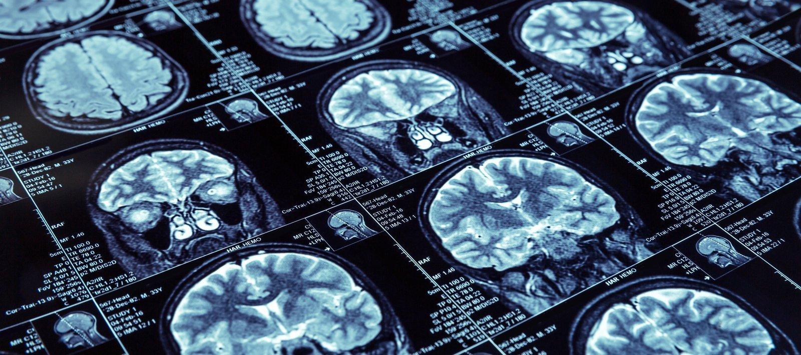 AI in medical diagnosis