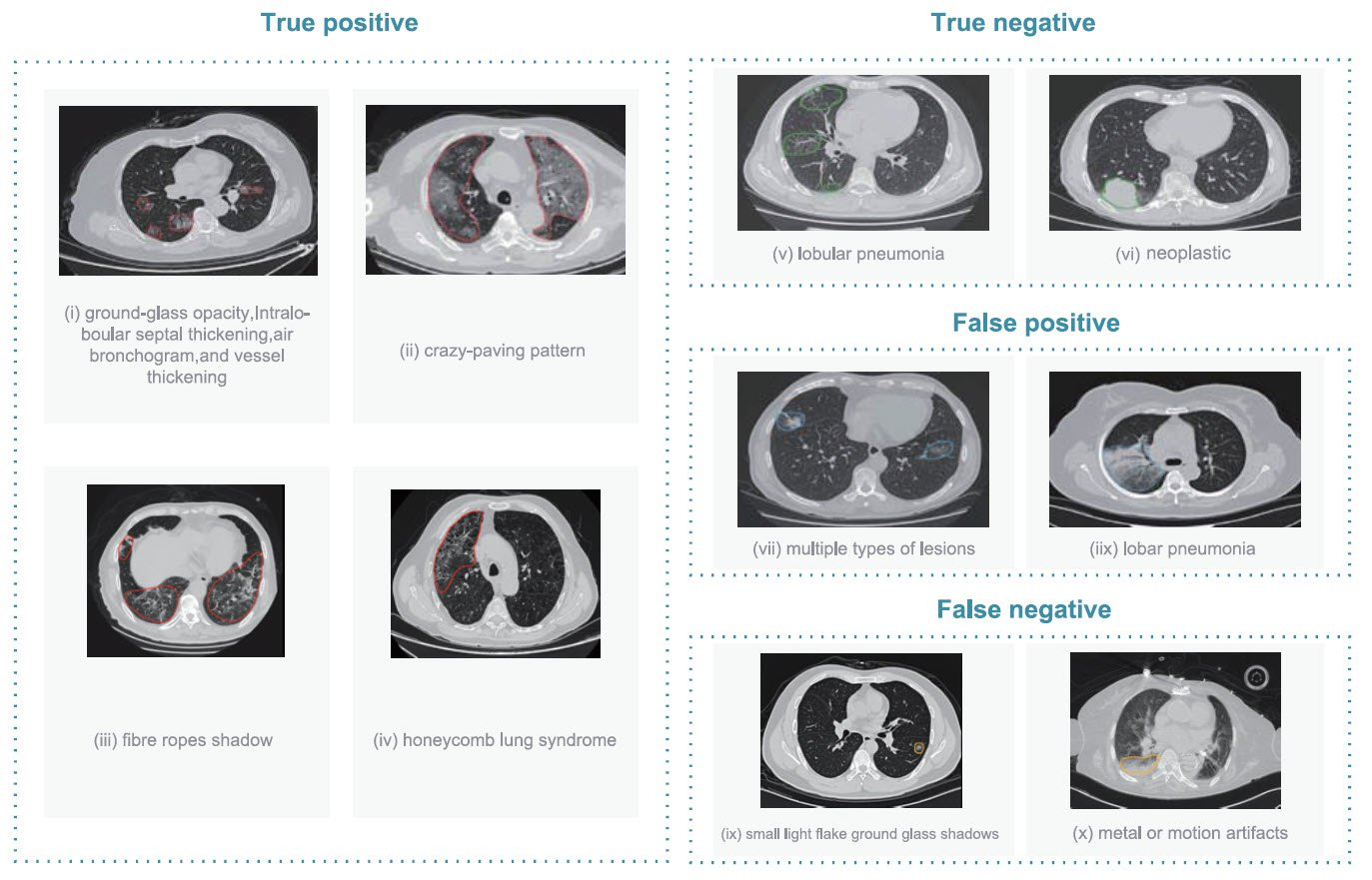 AI-assisted diagnosis for COVID-19 from computed tomography scans
