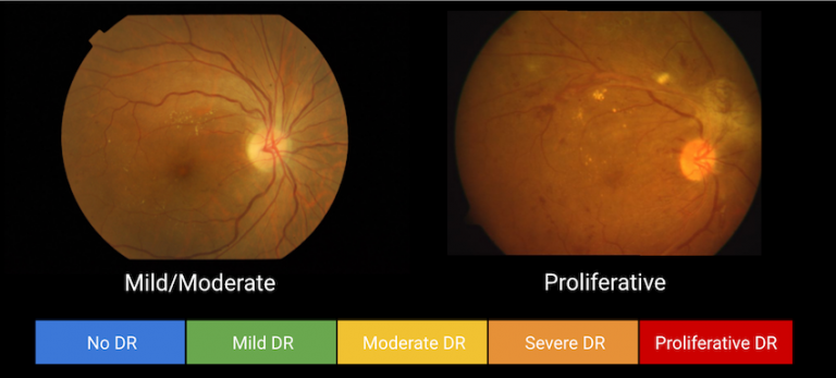Five levels of DR severity detected on retinal images