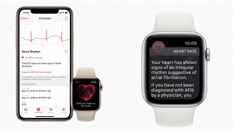 Apple Watch ECG feature