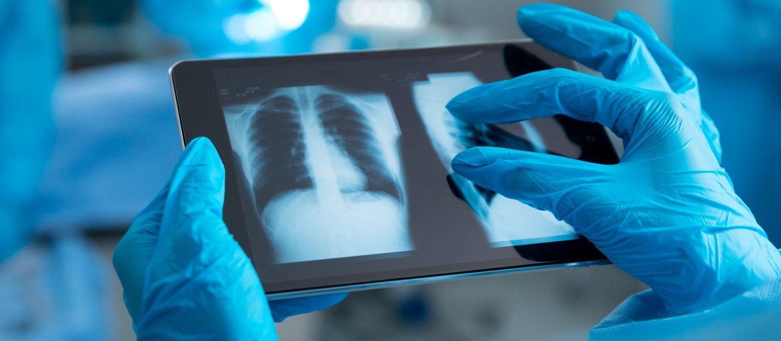 AI lung disease detection
