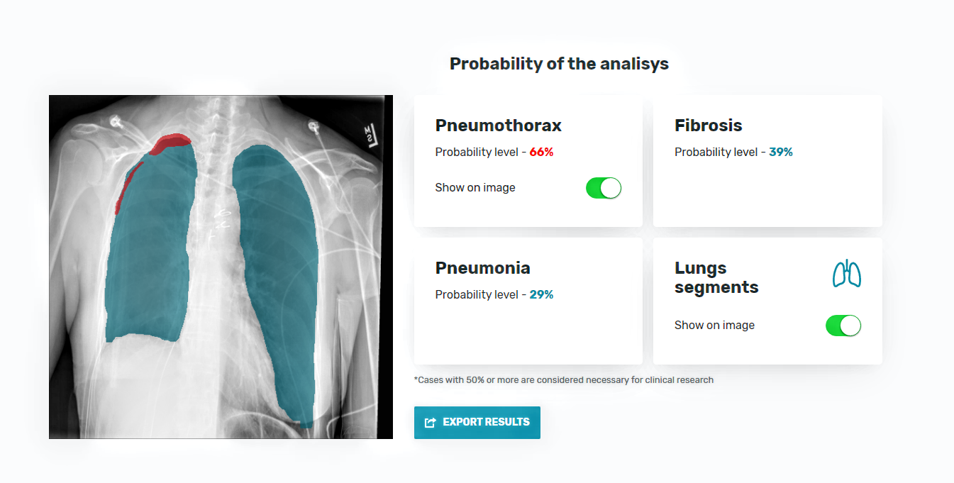 The interface of an AI-based diagnostic tool by AltexSoft