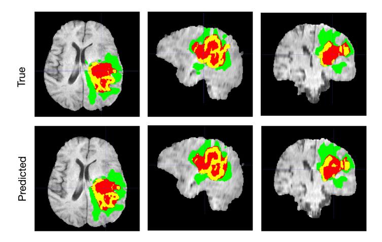 Brain tumore segmentation
